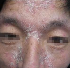 脸部银屑病护理方法是什么