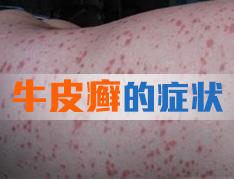 脓疱型牛皮癣不同时期的症状表现